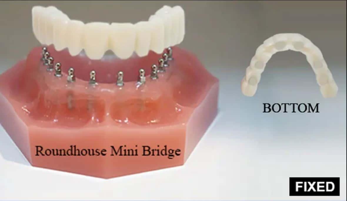 Dr Steven Uchida Dental Implants